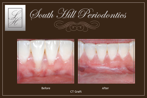 south hill periodontics